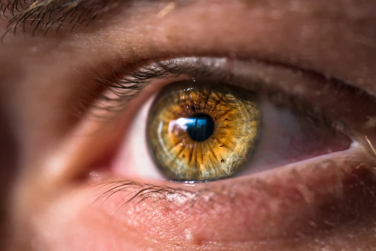How To Cure Dry Eyes Permanently?