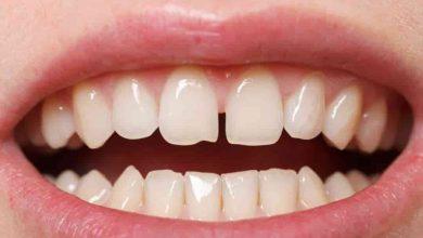 Cavity Between Teeth
